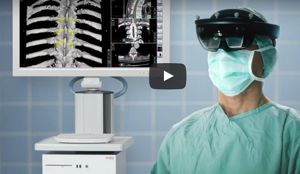Spine Surgery Using Scopis Holographic Navigation and Microsoft HoloLens